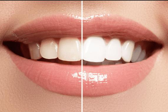 Quelques conseils pour des dents plus blanches