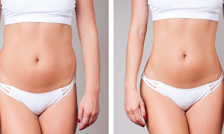 Liposuccion : Tout ce que vous devez savoir sur cette chirurgie esthétique